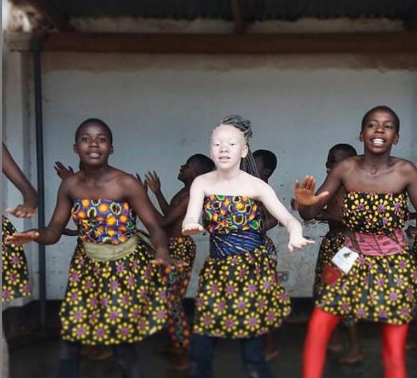 L'albinisme a l'Àfrica